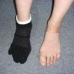 フットラボ横浜のメニューの写真 - 外反母趾・リュウマチのテーピング&靴下